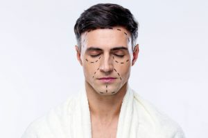 Man With Plastic Surgery Lines Drawn on Face