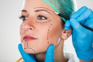 Woman With Markings On Her Face For Facelift Surgery