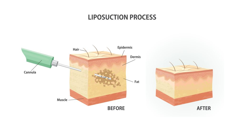 Suction assisted liposuction process