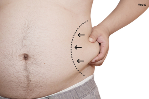 man hand grabbing his belly fat with a draw line for liposuction concept