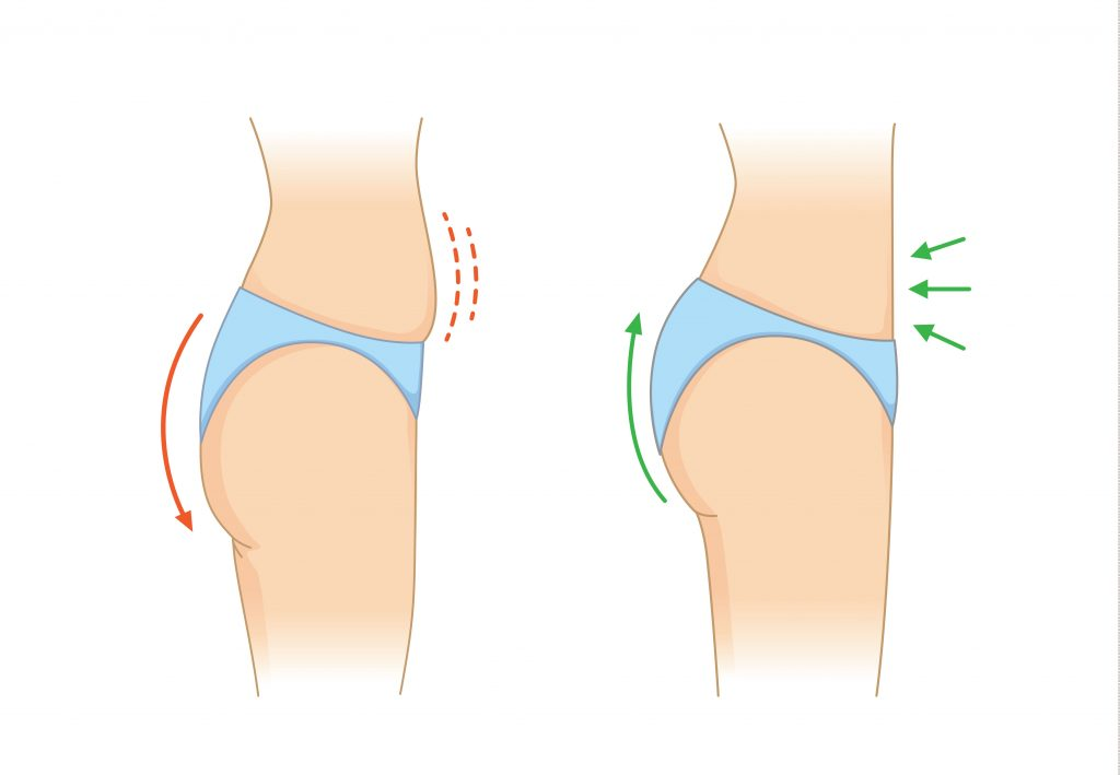 Arrows pointing at buttocks and abdomen referencing to a brazilian butt lift procedure