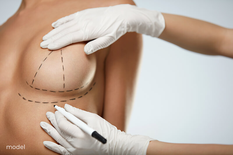 A young woman gets surgical lines drawn before breast surgery.