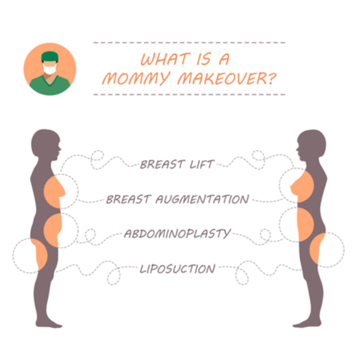Diagram showing procedures in a Mommy Makeover and what areas are targeted.