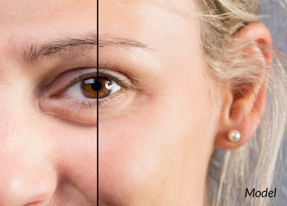 Close-up of woman's eye before and after surgery.